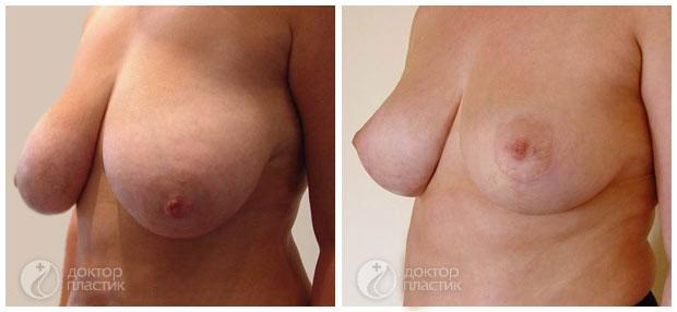 Уменьшение груди в Москве