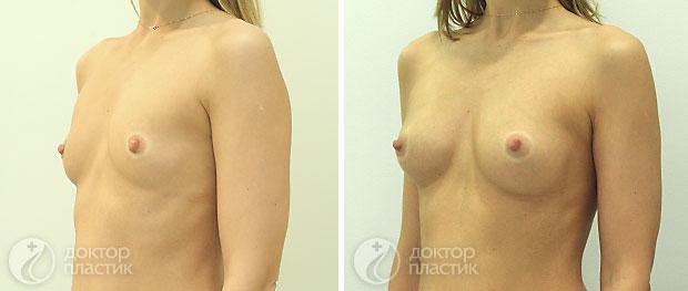 увеличение груди в москве акции