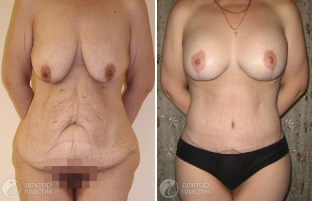 Операцию по увеличению груди при помощи как анатомических, так и круглых