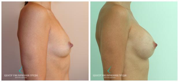 увеличение груди макган фото