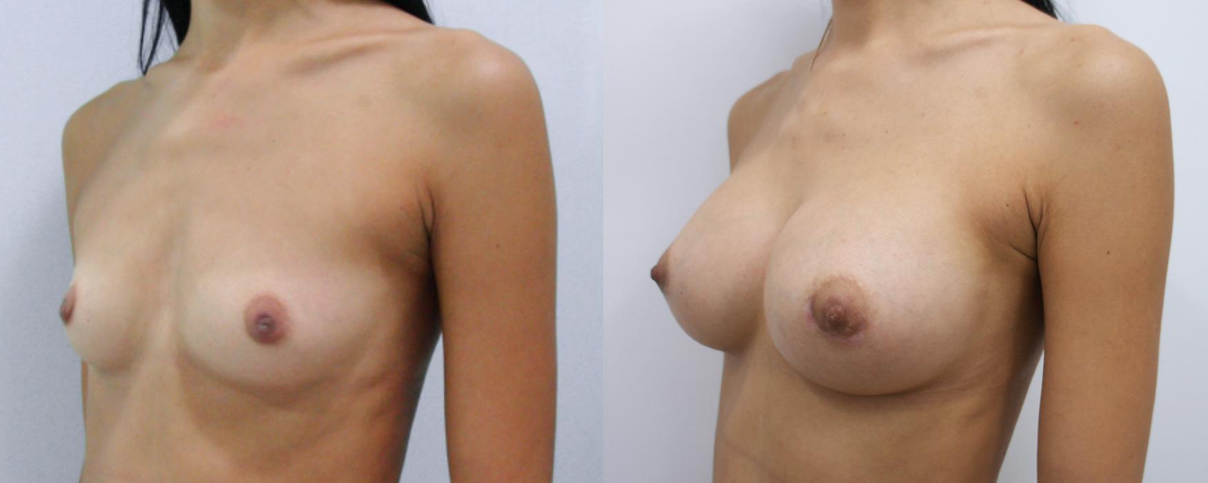 Эндопротезирование молочных желез с мастопексией, стоимость установки грудных имплантов