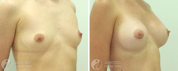 Сколько стоит сделать подтяжку груди