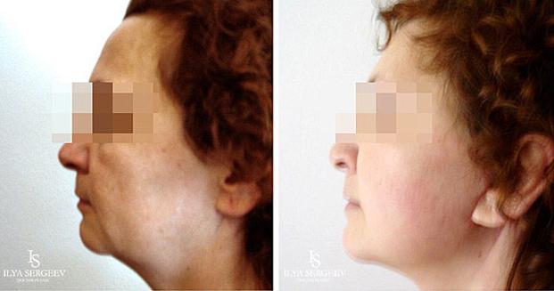 лифтинг нижней части лица (фото 1)