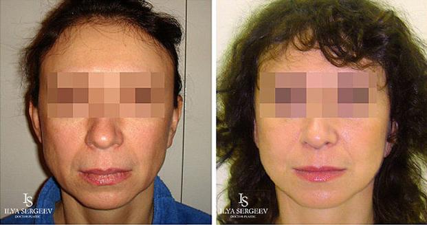 лифтинг нижней части лица (фото 2)