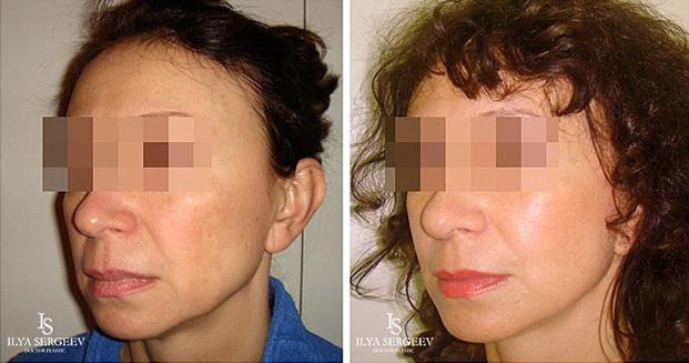 лифтинг нижней части лица (фото 3)