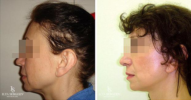лифтинг нижней части лица (фото 4)