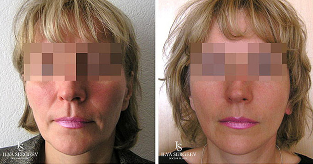 лифтинг нижней части лица (фото 5)