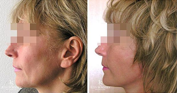 лифтинг нижней части лица (фото 6)