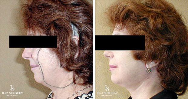 лифтинг нижней части лица (фото 8)