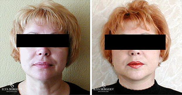 лифтинг нижней части лица (фото 9)