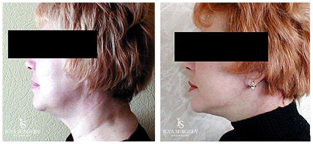 лифтинг нижней части лица (фото 10)