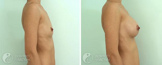 круглые импланты (фото 7)