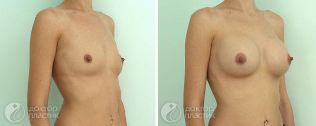 круглые импланты (фото 8)