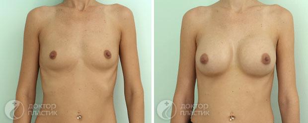 круглые импланты (фото 9)