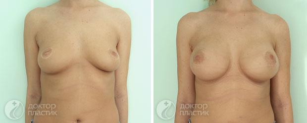 круглые импланты (фото 10)