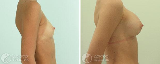круглые импланты (фото 2)