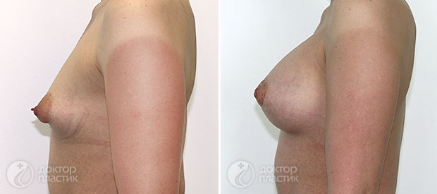 анатомические импланты (фото 9)