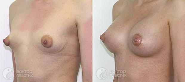анатомические импланты (фото 10)