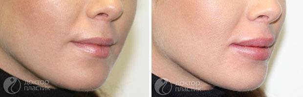коррекция губ (фото 4)