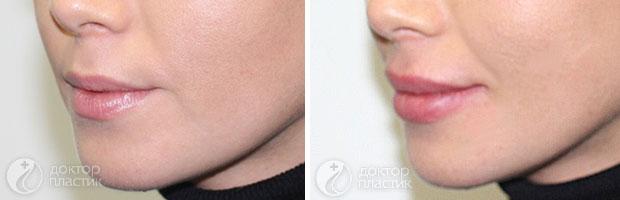 коррекция губ (фото 5)