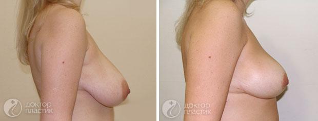 уменьшение груди (фото 1)