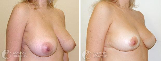 уменьшение груди (фото 2)