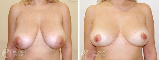 уменьшение груди (фото 3)