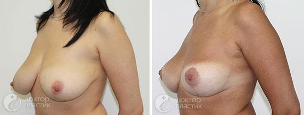 уменьшение груди (фото 4)