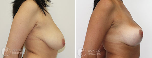 уменьшение груди (фото 5)