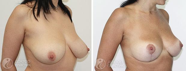 уменьшение груди (фото 6)