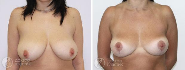 уменьшение груди (фото 7)
