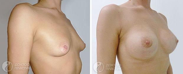 анатомические импланты (фото 2)