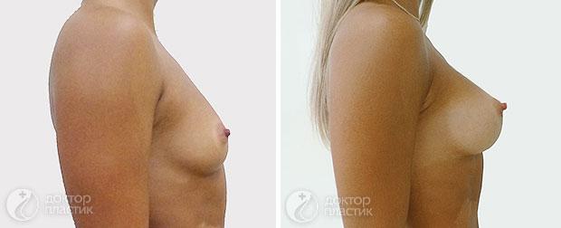 пластика груди (фото 9)