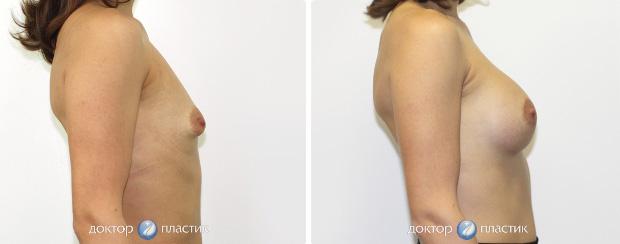 коррекция тубулярности (фото 7)