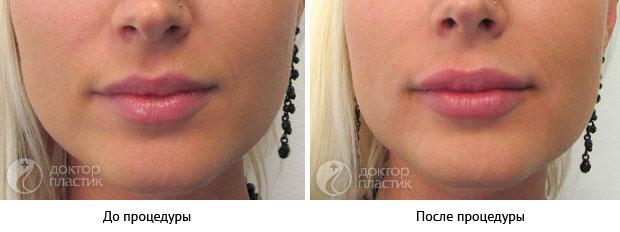 коррекция губ (фото 7)