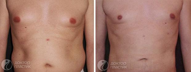 процедуры для тела (фото 4)