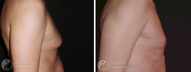 процедуры для тела (фото 6)