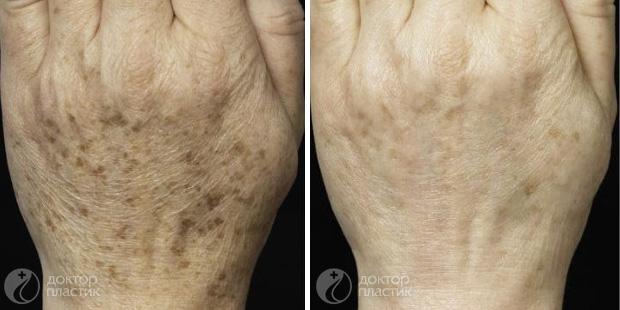 омоложение рук (фото 2)