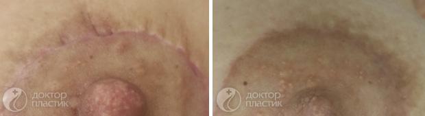 процедуры для тела (фото 2)