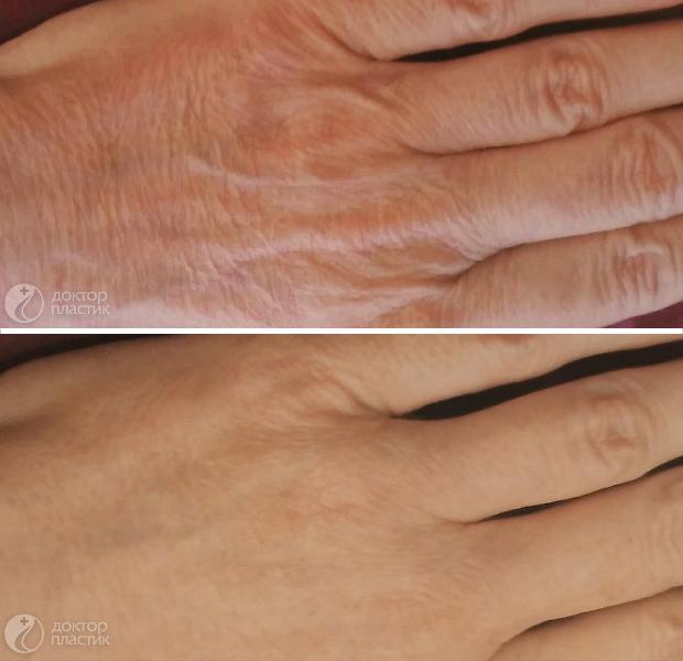 омоложение рук (фото 1)